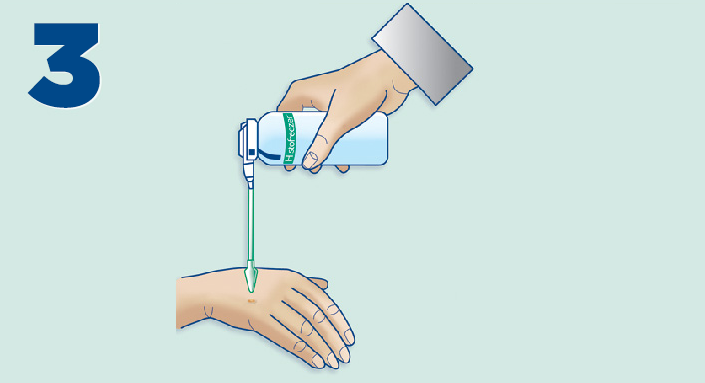 Histofreezer instructions: How to apply the frozen applicator