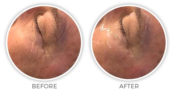 Before and after CryoTouch facial treatment