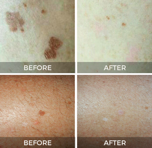 Before and after results with CryoClear therapy